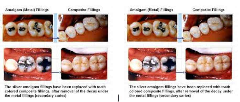 tooth Decay treatment